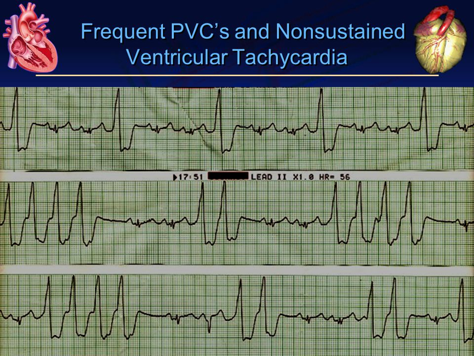 Frequent PVC's and Nonsustained Ventricular Tachycardia