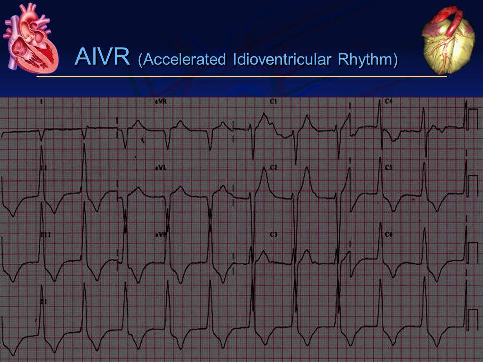 AIVR (Accelerated Idioventricular Rhythm)