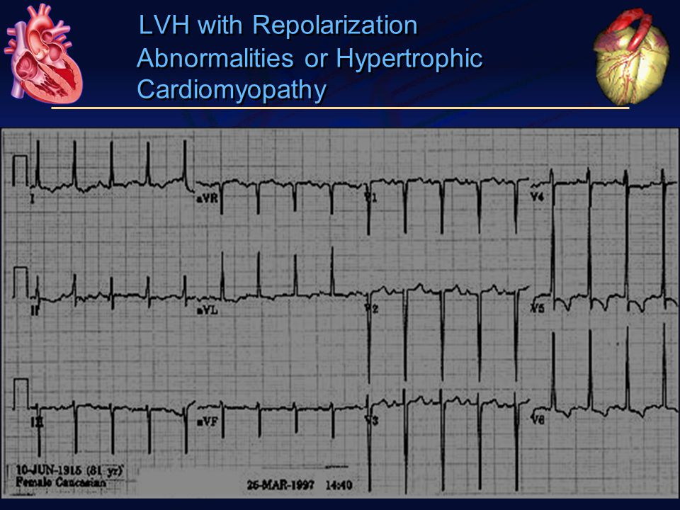 LVH with Repolarization Abnormalities or Hypertrophic Cardiomyopathy