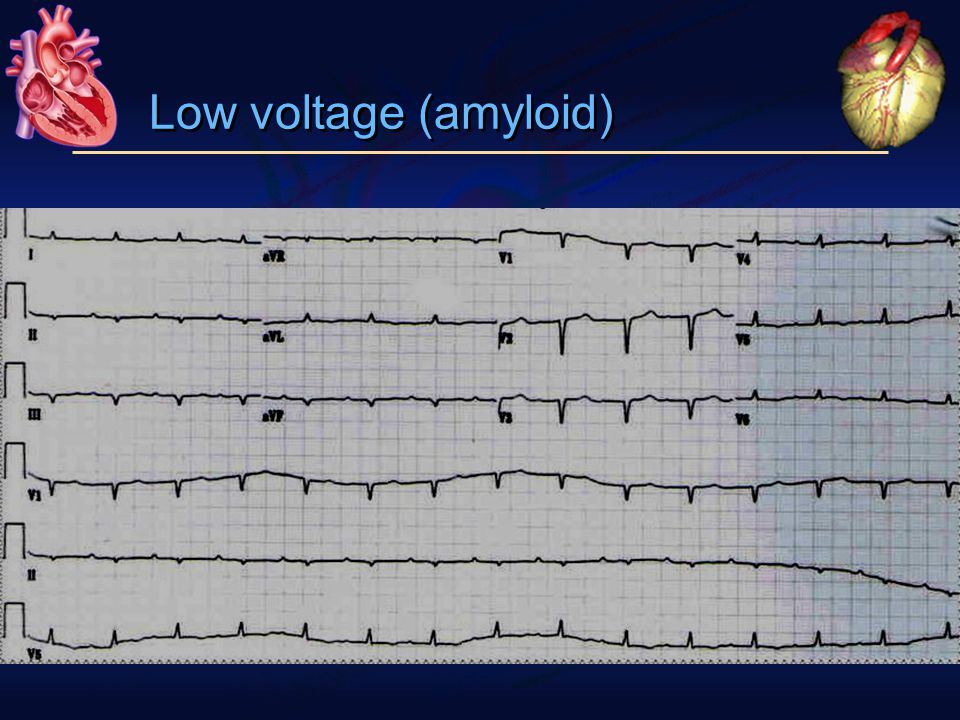 Low voltage (amyloid)