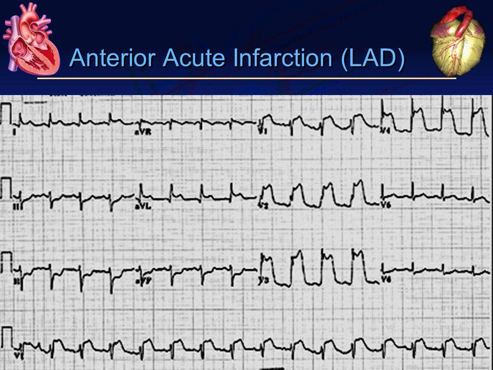 Anterior Acute Infarction (LAD)
