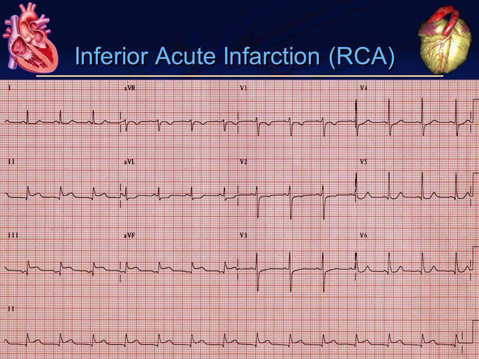 Inferior Acute Infarction (RCA)