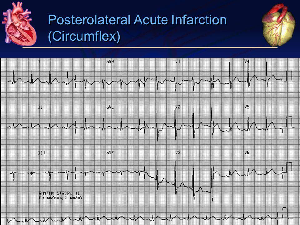 Posterolateral Acute Infarction (Circumflex)