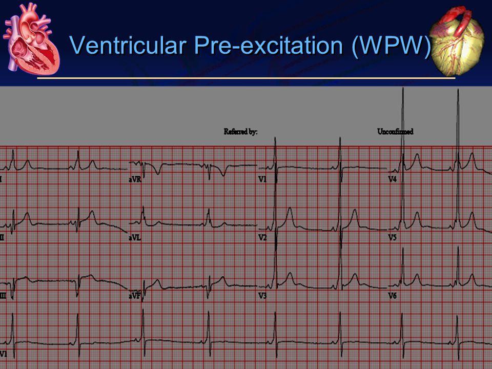 Ventricular Pre-excitation (WPW)