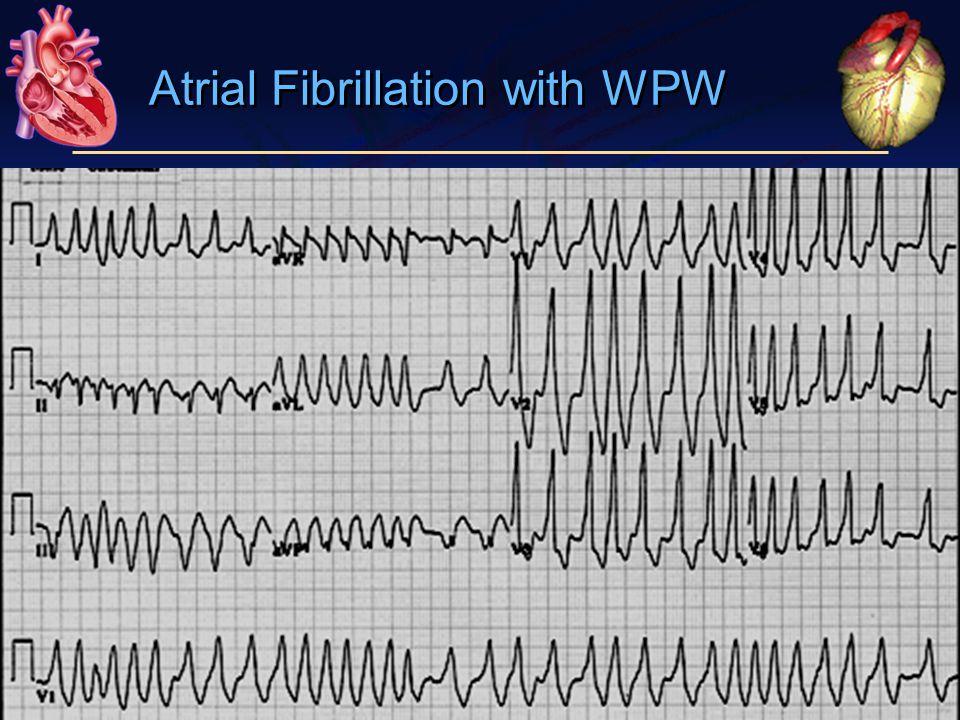 Atrial Fibrillation with WPW