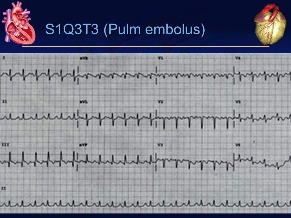 S1Q3T3 (Pulm embolus)