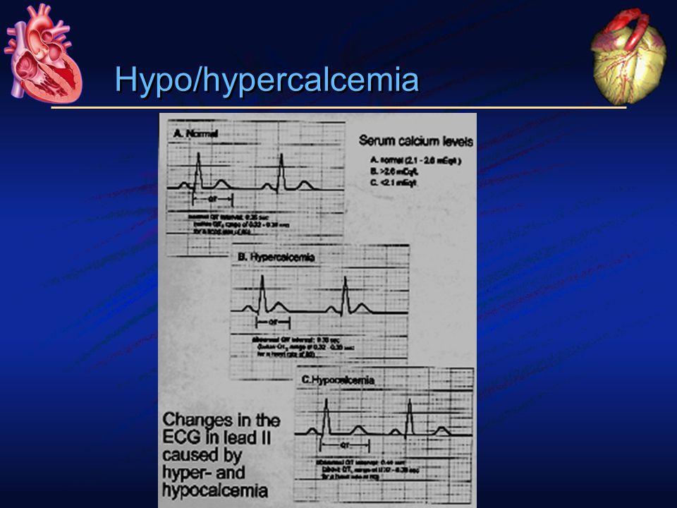 Hypo/hypercalcemia