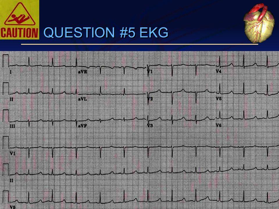 QUESTION #5 EKG