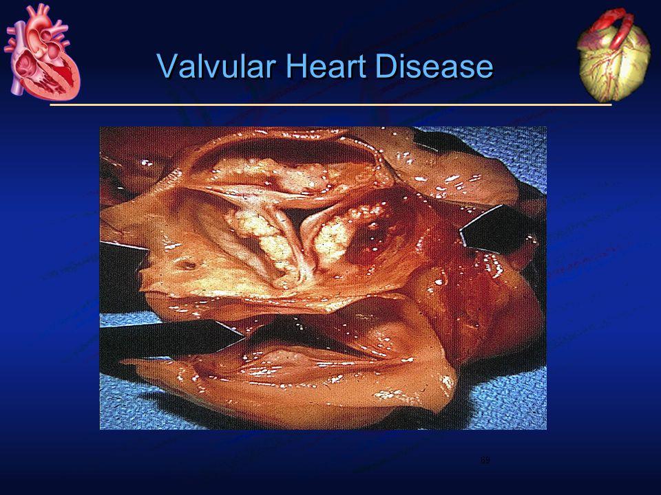 69 Valvular Heart Disease