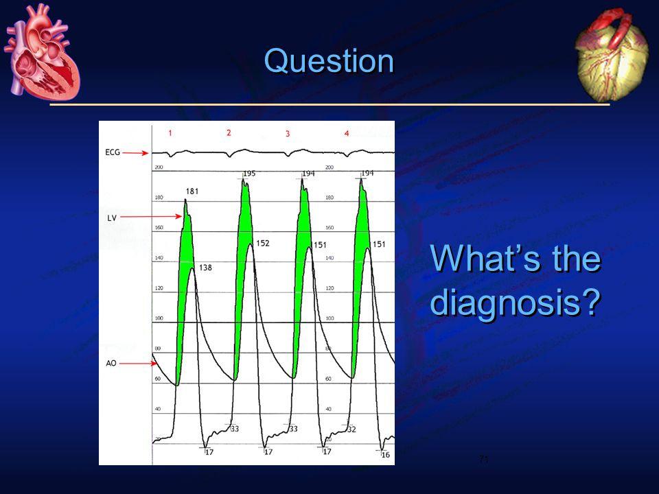 What's the diagnosis 71 Question