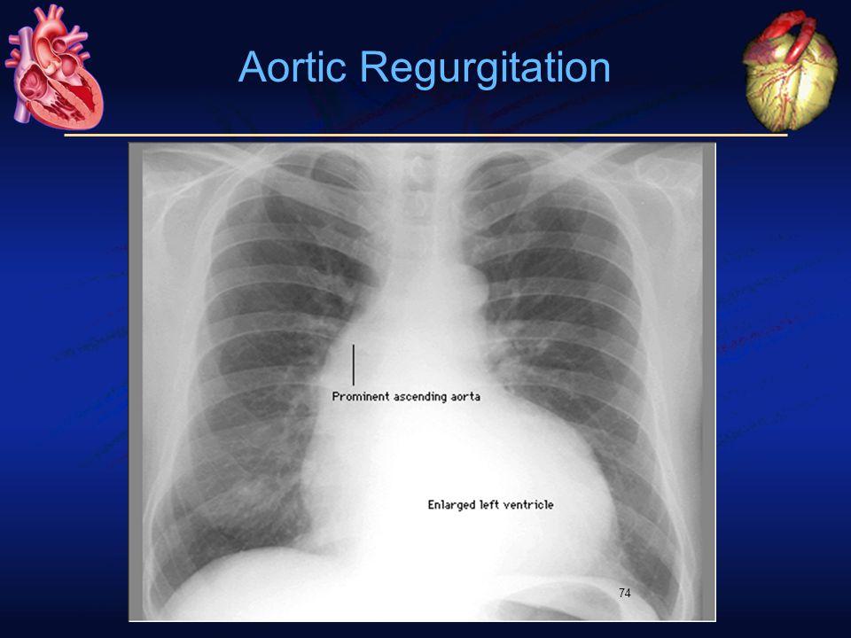 74 Aortic Regurgitation
