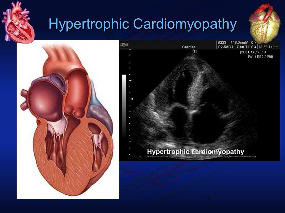 Hypertrophic Cardiomyopathy 78
