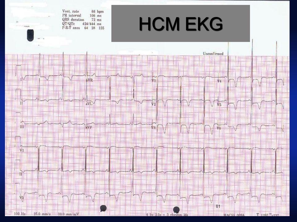 HCM EKG 81