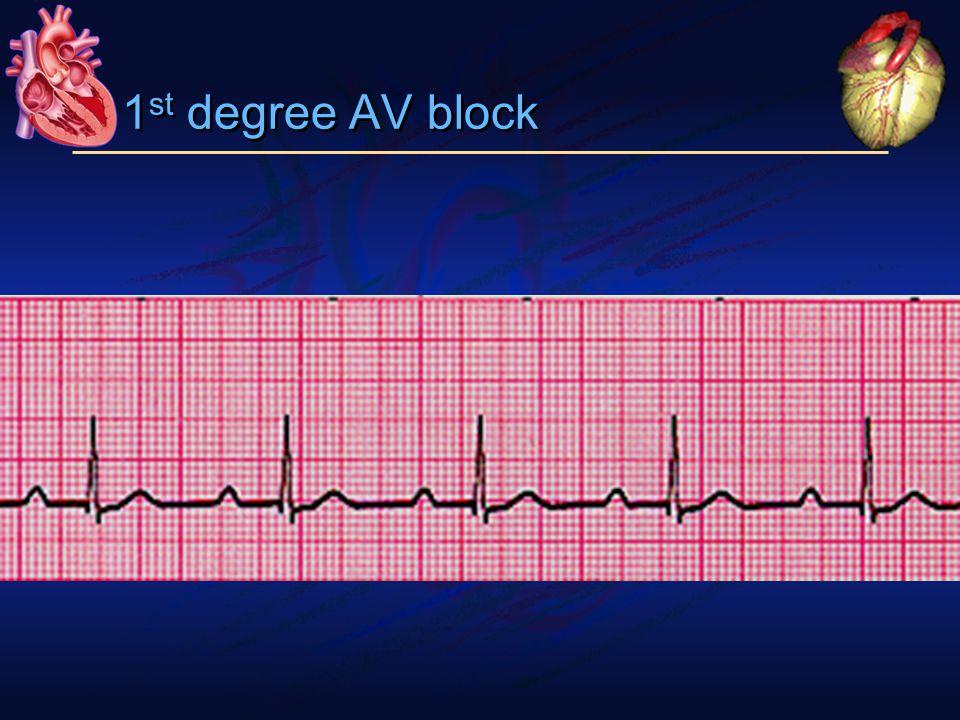 1 st degree AV block