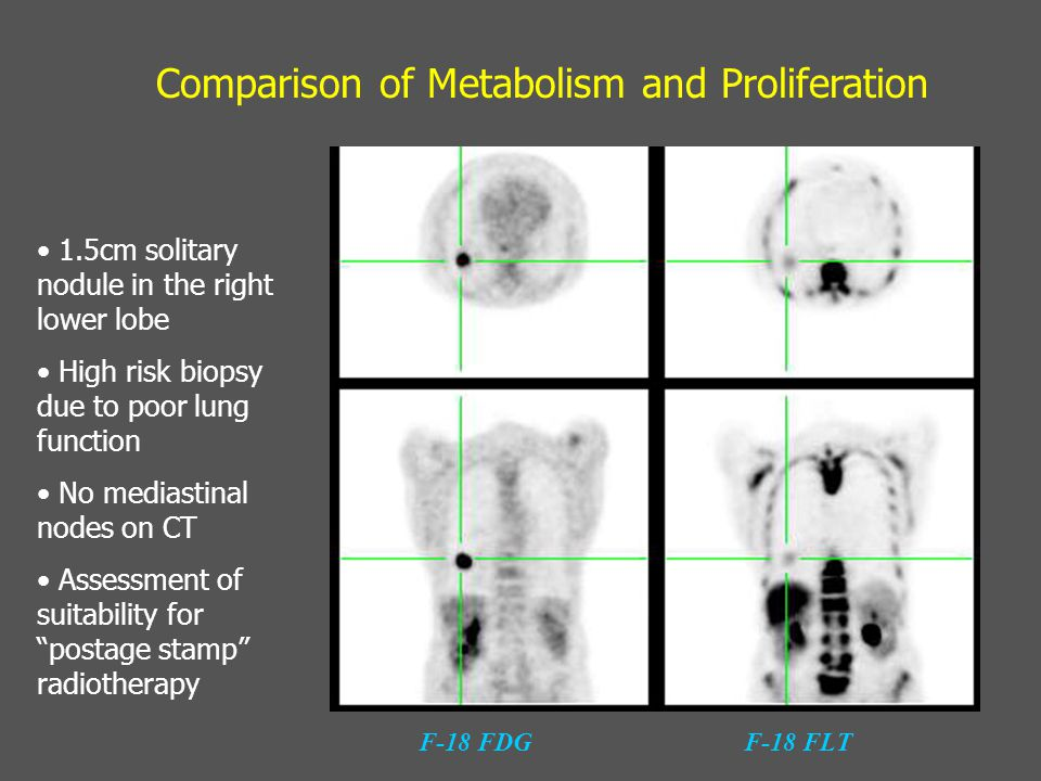 Comparison of Metabolism and Proliferation F-18 FDGF-18 FLT 1.5cm solitary nodule in the right lower lobe High risk biopsy due to poor lung function No mediastinal nodes on CT Assessment of suitability for postage stamp radiotherapy