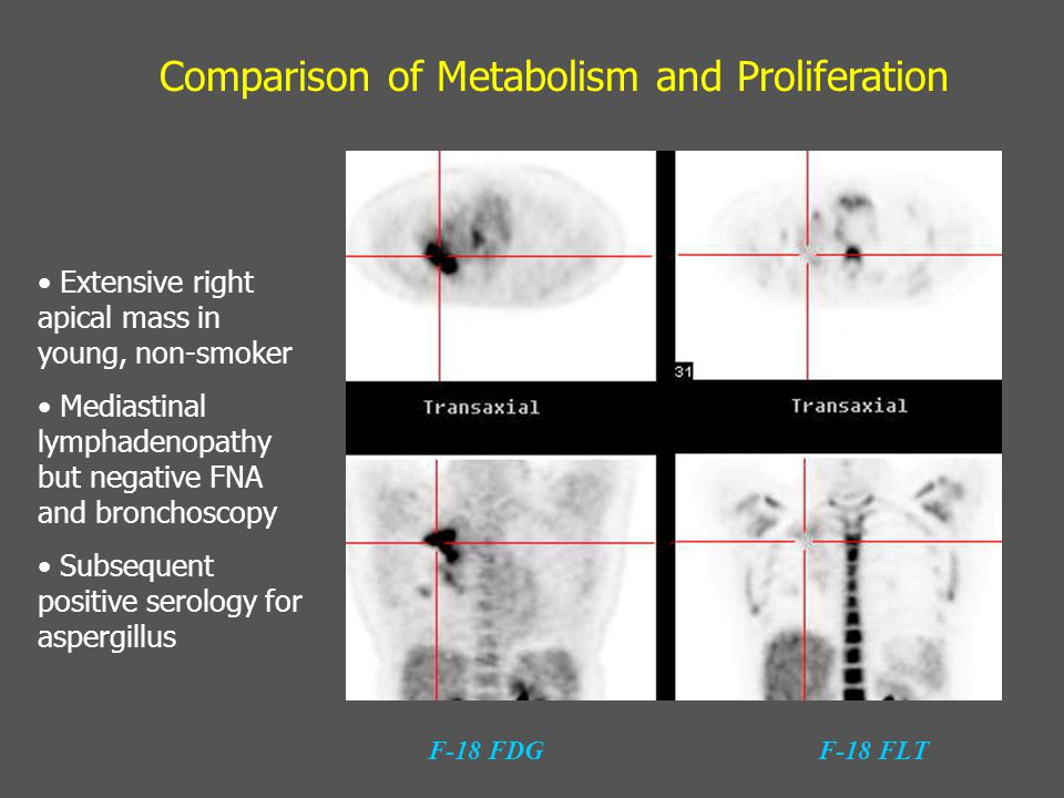 Comparison of Metabolism and Proliferation F-18 FDGF-18 FLT Extensive right apical mass in young, non-smoker Mediastinal lymphadenopathy but negative
