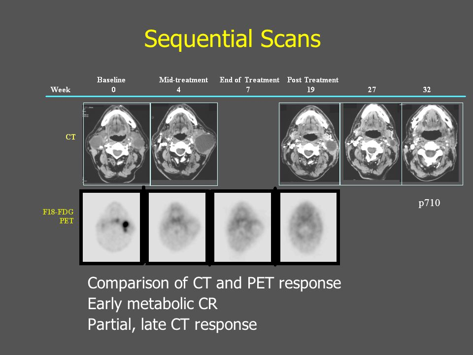 Sequential Scans Comparison of CT and PET response Early metabolic CR Partial, late CT response p710