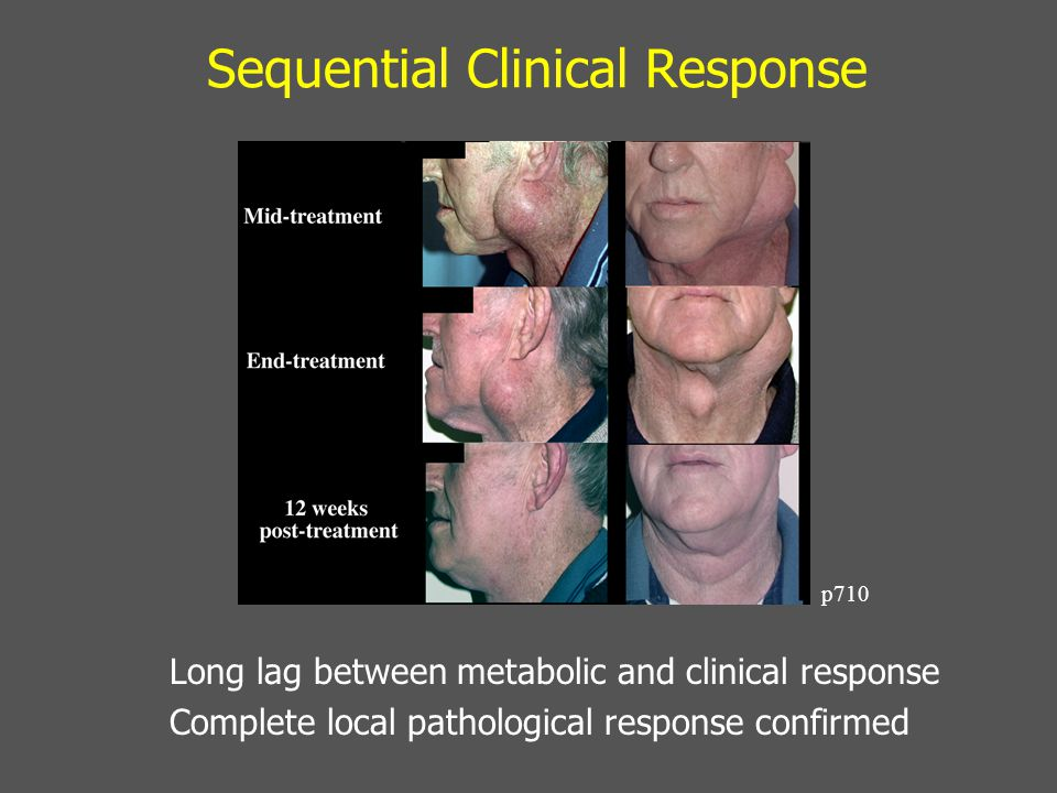 Sequential Clinical Response Long lag between metabolic and clinical response Complete local pathological response confirmed p710