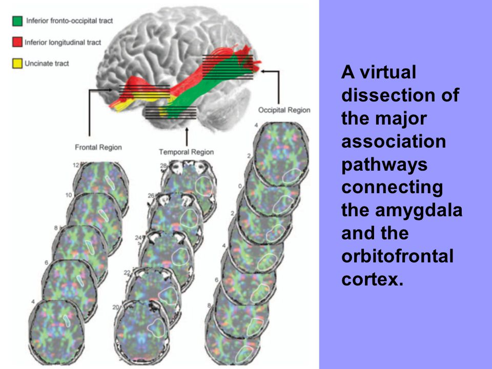 A virtual dissection of the major association pathways connecting the amygdala and the orbitofrontal cortex.
