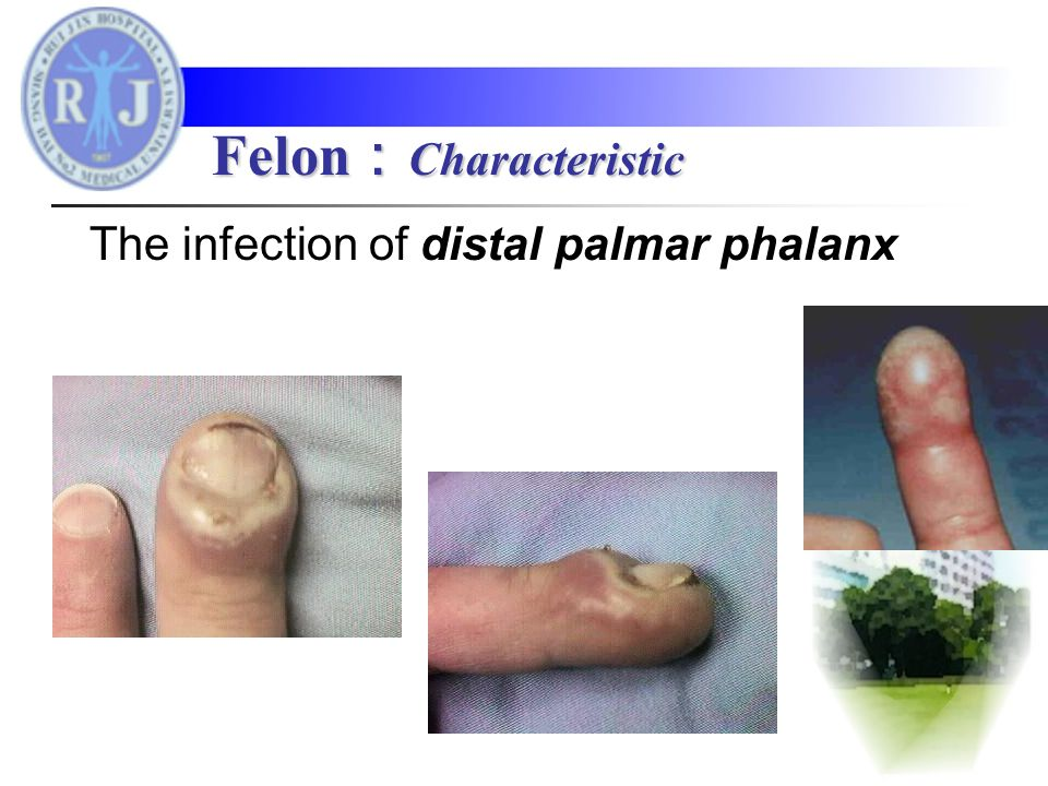 The infection of distal palmar phalanx Felon : Characteristic