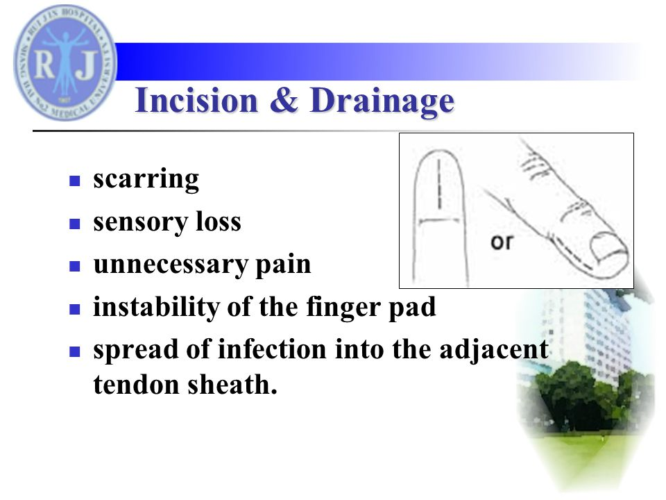 scarring sensory loss unnecessary pain instability of the finger pad spread of infection into the adjacent tendon sheath.
