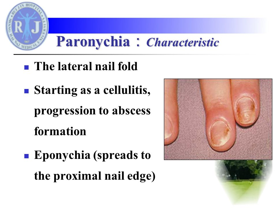 The lateral nail fold Starting as a cellulitis, progression to abscess formation Eponychia (spreads to the proximal nail edge) Paronychia : Characteristic
