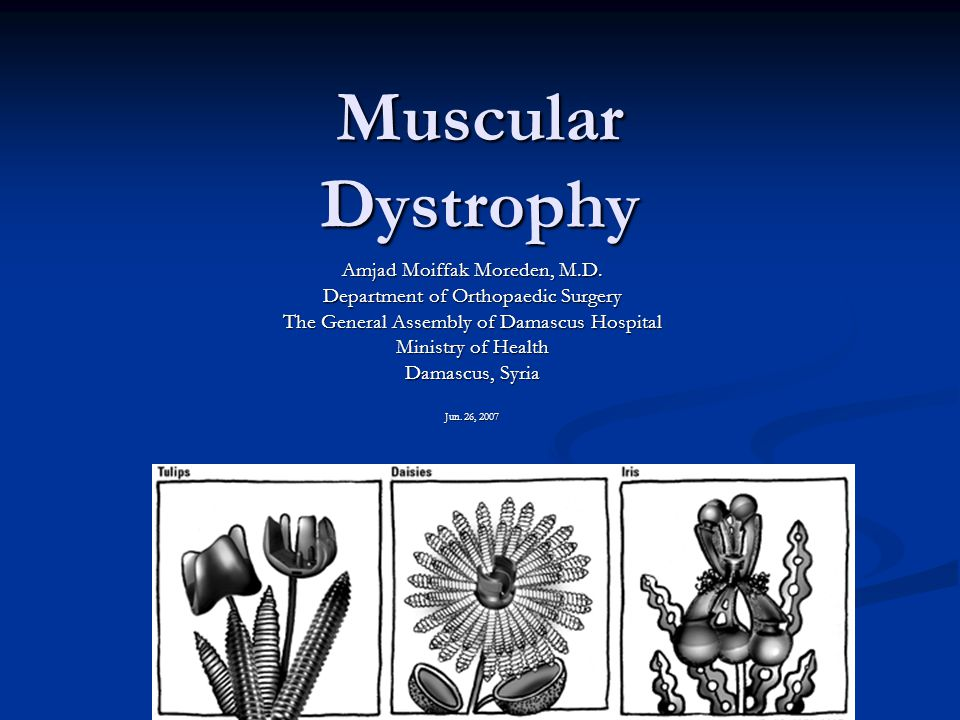 Introduction Muscular dystrophy (MD) is a group of rare inherited muscle diseases in which muscle fibers are unusually susceptible to damage.