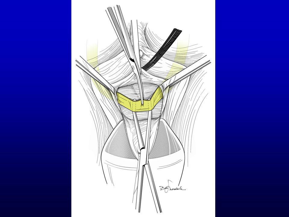 Transvaginal Incision of Sling Grasp sling with Allis clamps & pull outward Dissect between sling & urethra Incise sling in midline Sling should spring apart