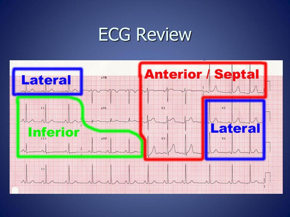 ECG Review