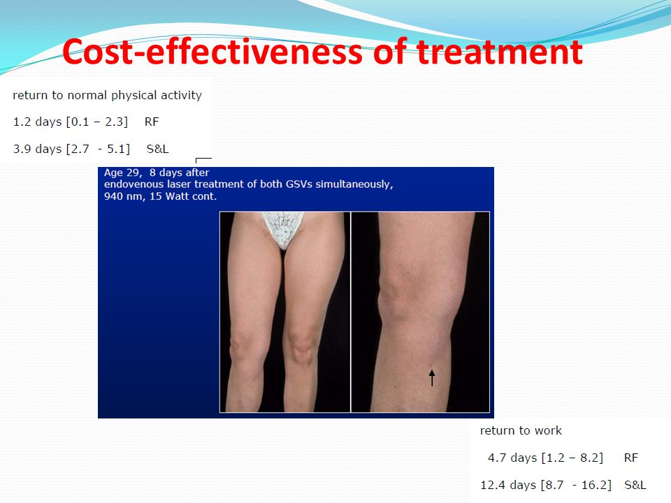 Cost-effectiveness of treatment