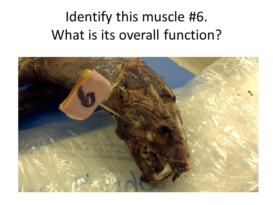 Identify this muscle #6. What is its overall function?