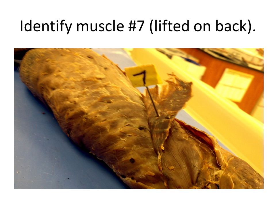 Identify muscle #7 (lifted on back).