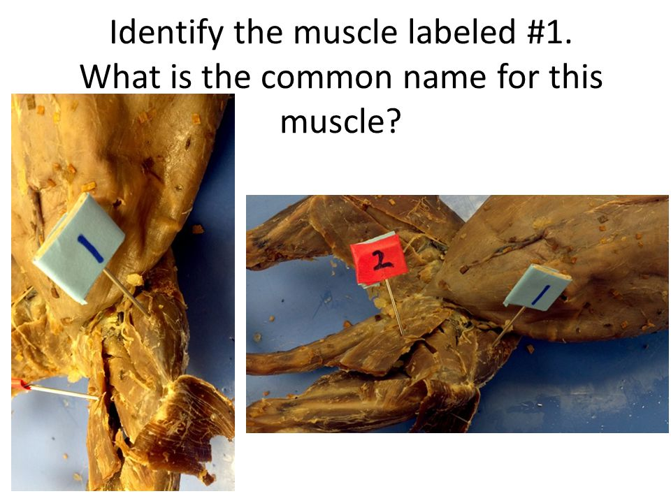 Identify the muscle labeled #1. What is the common name for this muscle?