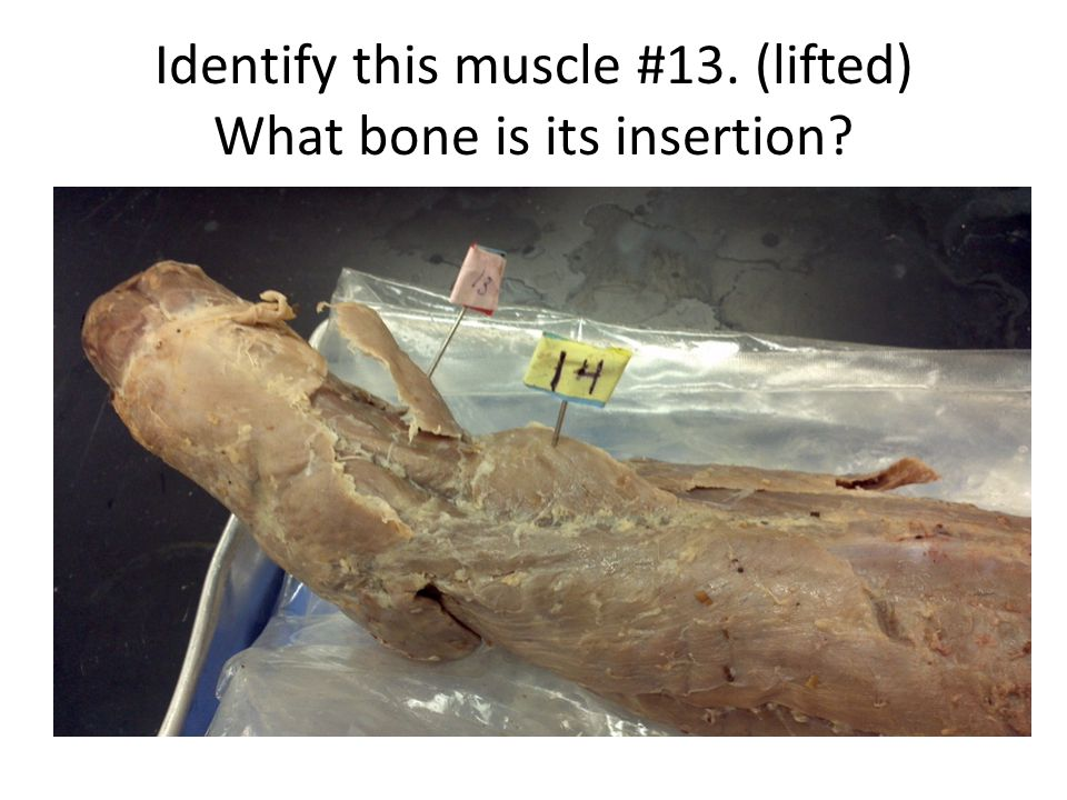 Identify this muscle #13. (lifted) What bone is its insertion?