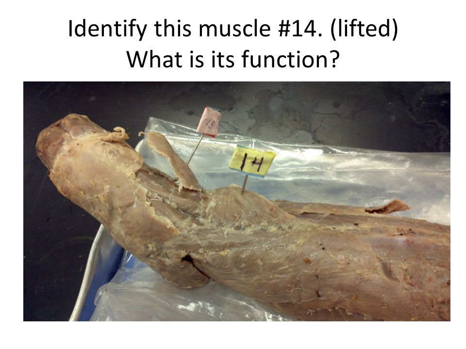 Identify this muscle #14. (lifted) What is its function?