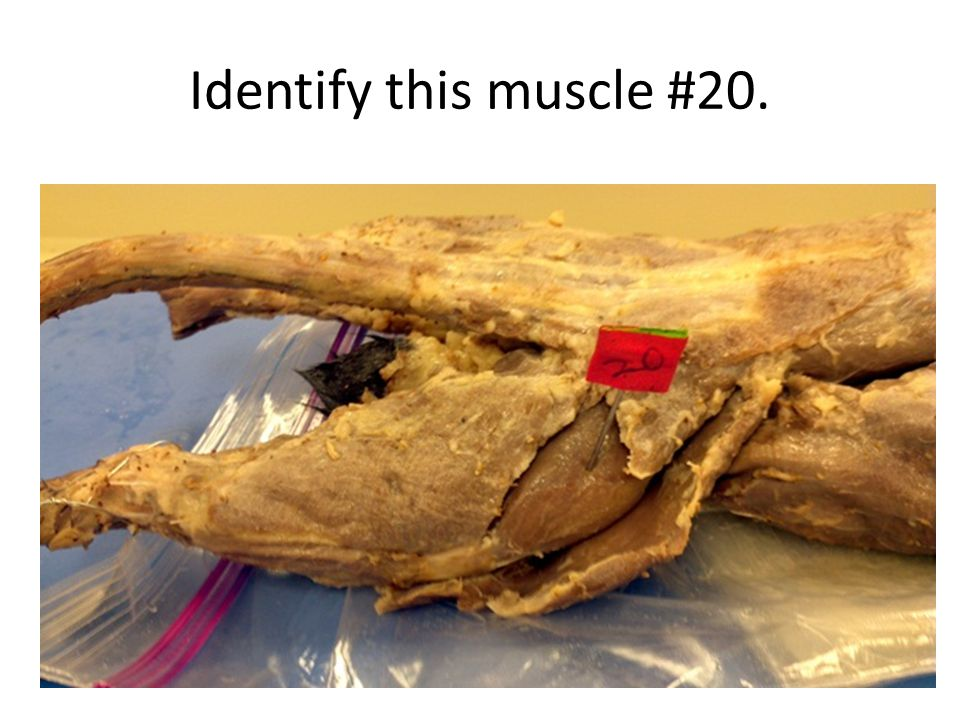 Identify this muscle #20.