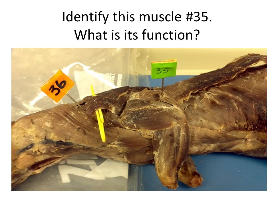 Identify this muscle #35. What is its function?