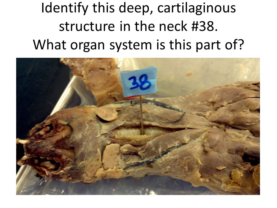 Identify this deep, cartilaginous structure in the neck #38. What organ system is this part of?