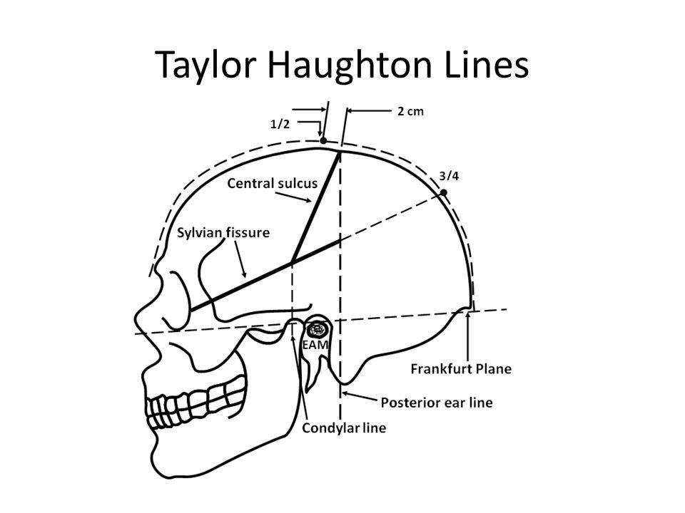 Taylor Haughton Lines