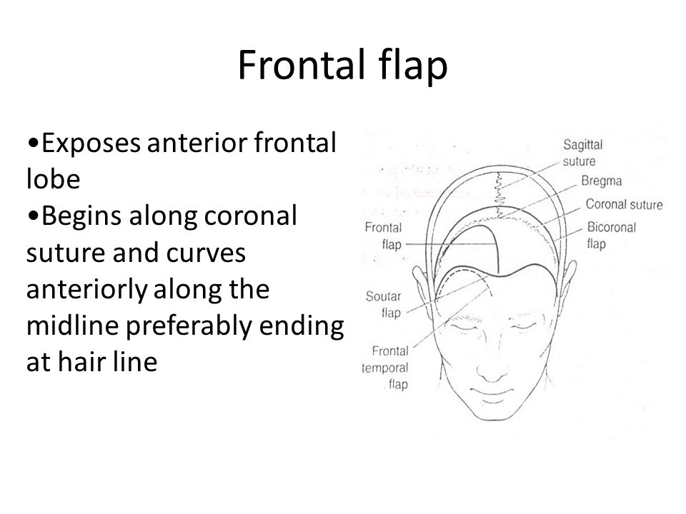 Frontal flap Exposes anterior frontal lobe Begins along coronal suture and curves anteriorly along the midline preferably ending at hair line