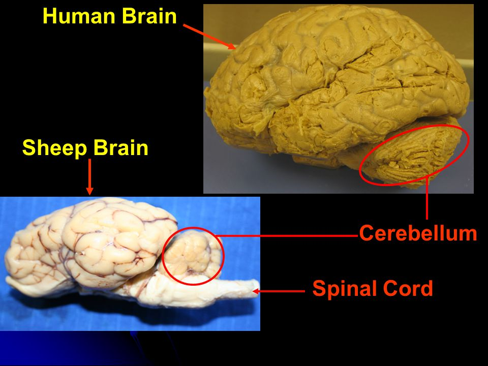 Gray & White Matter of the Cerebrum Sheep Brain (Anterior) (Posterior) Gray Matter White Matter Human Brain