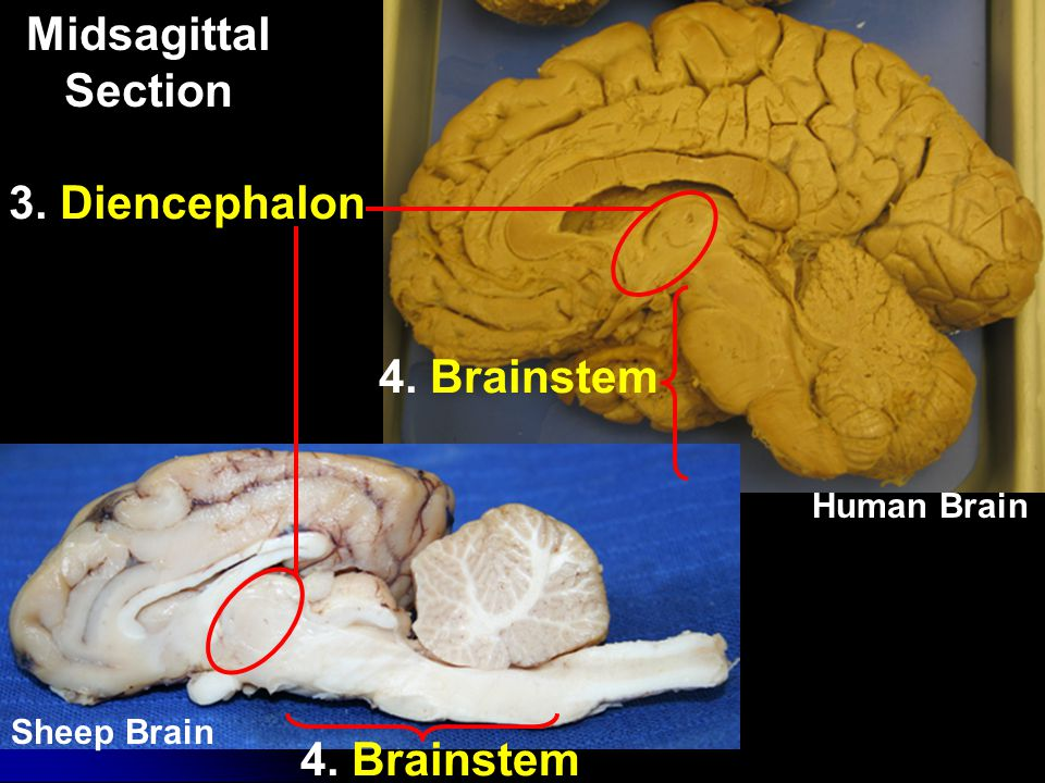 White Matter Human Brain What parts of a neuron are found in cerebral white mater?