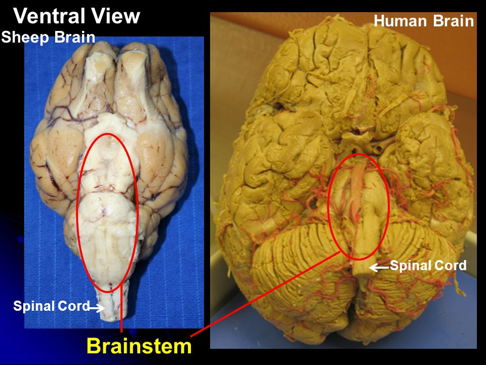 Structures found in the Cerebrum Cerebrum Human BrainSheep Brain Superior View