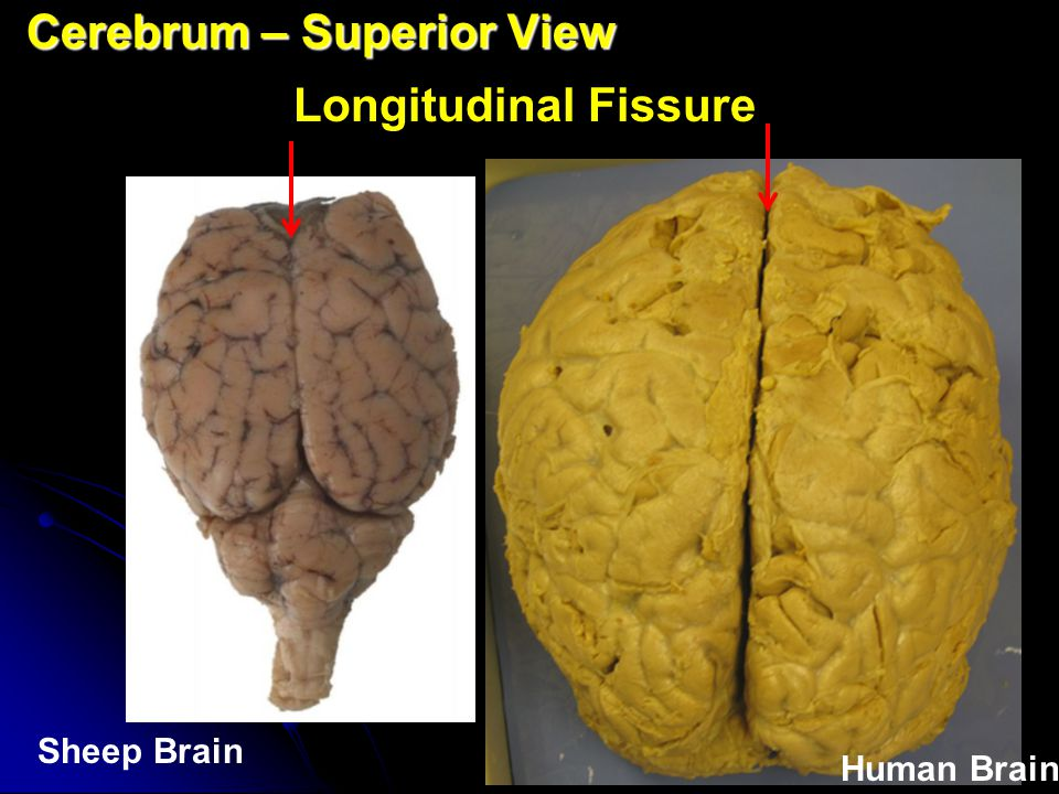 Cerebrum Cerebrum Transverse Fissure Human Brain – Right Lateral View Sheep Brain – Superior View