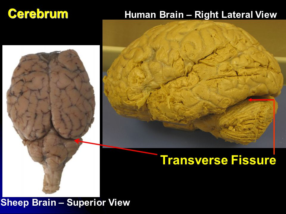 Cerebrum Cerebrum Human Brain – Lateral View Sheep Brain – Superior View Gyri (Gyrus – Singular)