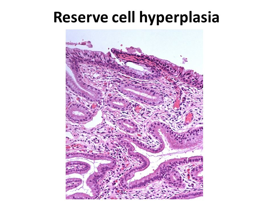 Reserve cell hyperplasia