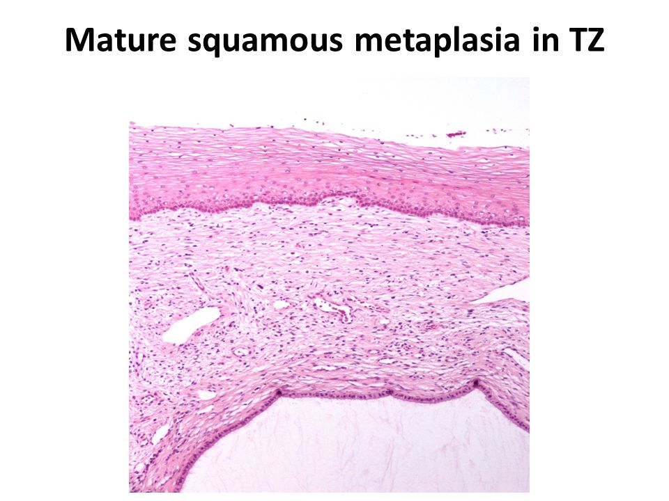 Mature squamous metaplasia in TZ