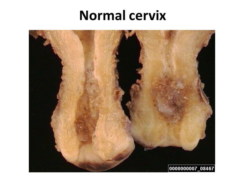 Normal cervix