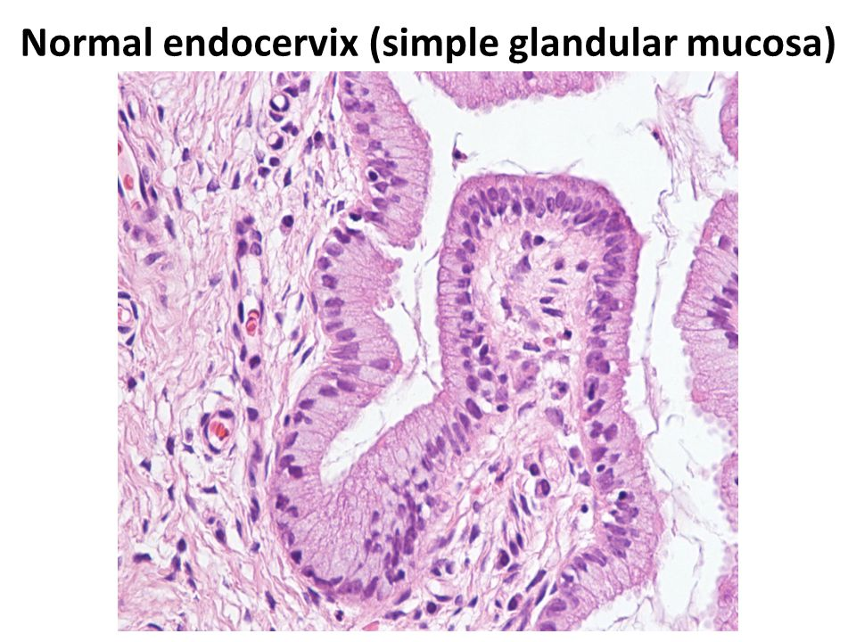 Normal endocervix (simple glandular mucosa)
