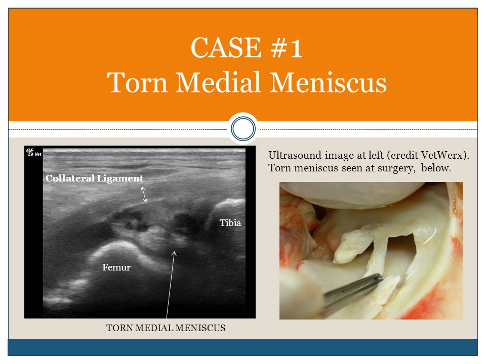 CASE #1 Torn Medial Meniscus Femur Tibia TORN MEDIAL MENISCUS Collateral Ligament Ultrasound image at left (credit VetWerx). Torn meniscus seen at sur